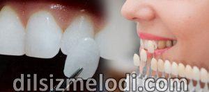 Lamina diş fiyatları, 2. Sınıf lamina diş, lamina diş tedavisi