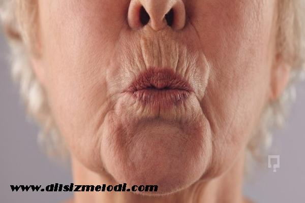 dudak çevresi kırışıklığı, dudak kırışıklığına çözüm, dudak çevresinin kırışması