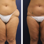 Liposuction nasıl yapılır, Liposuction nasıl uygulanır, Liposuction uygulaması yapımı