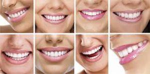 gülüş tasarımı yaptırma, gülüş estetiği yaptırma, gülüş tasarımı nasıl yapılır