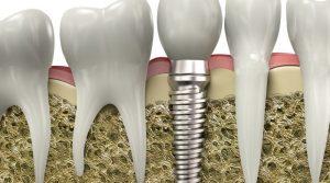 implant markaları, sağlıklı implant markaları, kaliteli implant markaları
