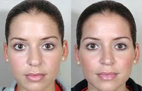 burun estetiği sonrası, estetik ameliyat sonrası masaj, burun estetiği sonrasında bakım yapma