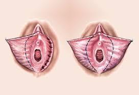 vajina estetiği yapımı, vajina estetiği yaptıranlar, vajina estetiği sonrası