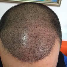 saç ekim merkezi, saç ekim ücretleri, saç ekim merkezi ücretleri ne kadar