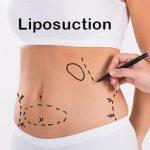 Liposuction,Ankara Liposuction , Ankara Liposuction merkezleri