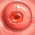 rahim ağzı yarası, rahim ağzında neden yara oluşur, bayanlardaki rahim ağzı yarası sebepleri