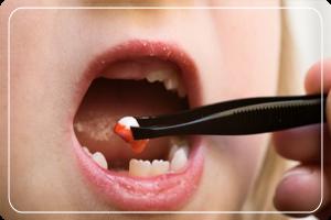 diş çekimi, diş çekimi yapımı, diş nasıl çekilir