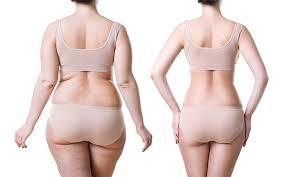liposuction yöntemleri, liposuction yapımı, liposuction uygulaması