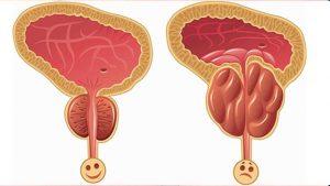 prostat iltihabı, prostat iltihabı tedavisi