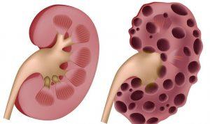 böbrek üstü bezi tümörü, böbrek üstü bezi tümör oluşumu, böbrek üstünde tümör gelişimi
